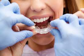 Key considerations to pay attention to when choosing an orthodontist